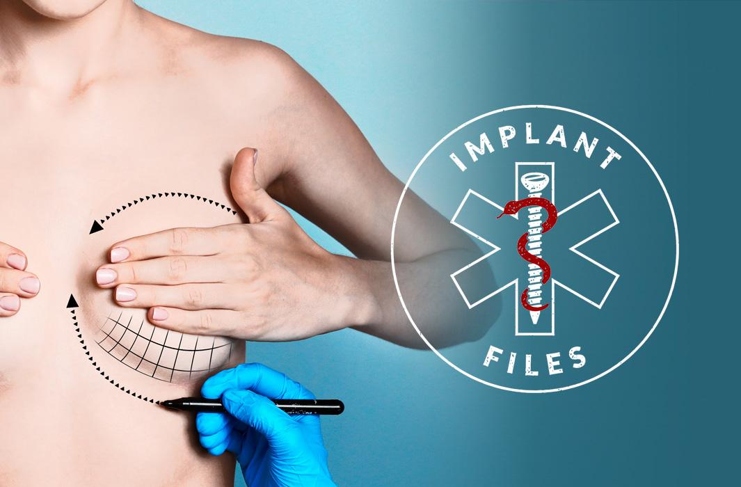 Retiran implantes mamarios por riesgo de cáncer